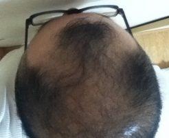 2016年11月22日の頭頂部