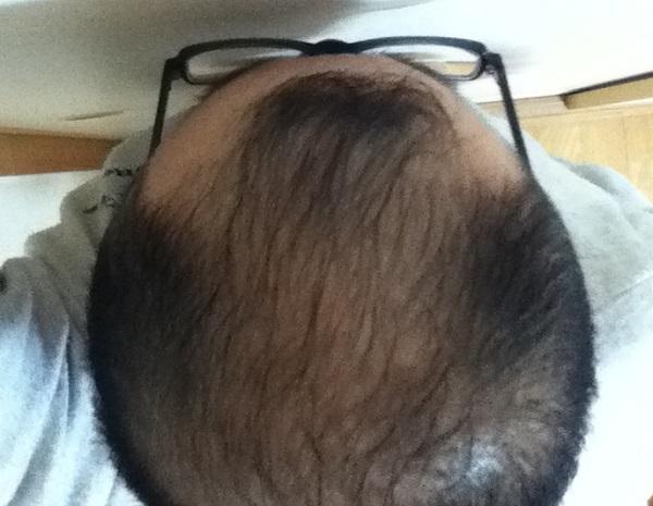2016年11月28日の頭頂部