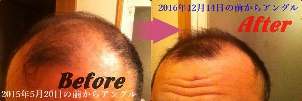 2015年5月20日から2016年12月14日の頭の比較