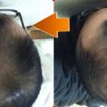 フィンジアでほぼ1年間を振り返り過去の頭頂部画像と比較