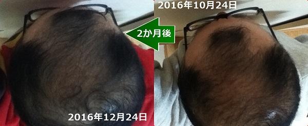 2016年10月24日から2か月後の頭頂部