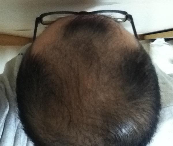 2016年12月1日の頭頂部
