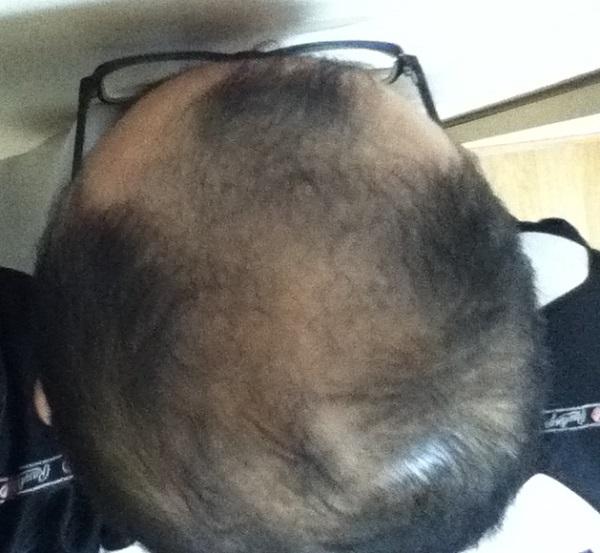 2016年12月4日の頭頂部
