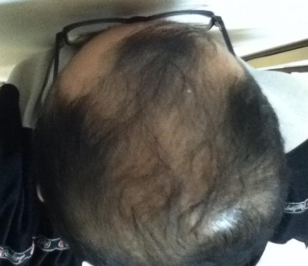 2016年12月16日の頭頂部