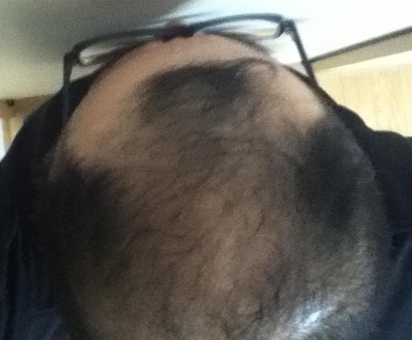2016年12月17日の頭頂部