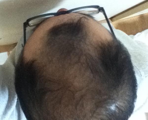 2016年12月19日の頭頂部画像