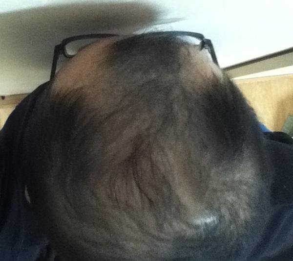 2016年12月22日朝の頭頂部