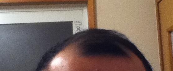 2016年12月25日の前髪の黒さ