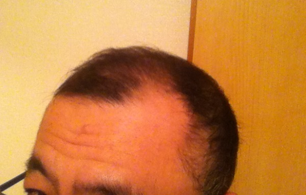 2016年12月25日の斜め前側頭部