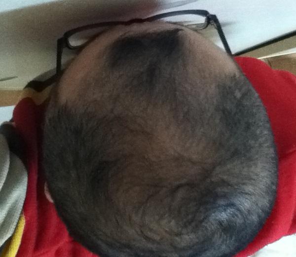 2016年12月31日の頭頂部画像
