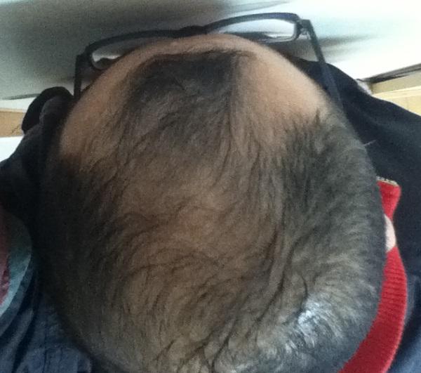 2017年1月12日の頭頂部