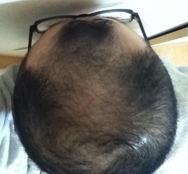 2017年1月17日の頭頂部