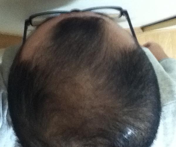 2017年1月20日の頭頂部