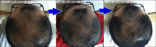最新3か月間のフィンジアの結果を画像で比較