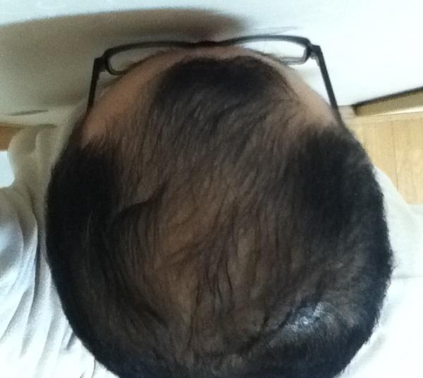 2017年2月2日の頭頂部