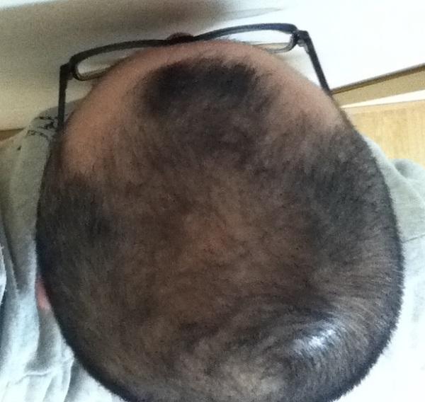 2017年2月10日の頭頂部画像