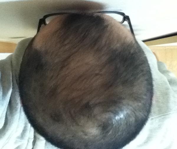 2017年2月13日の頭頂部