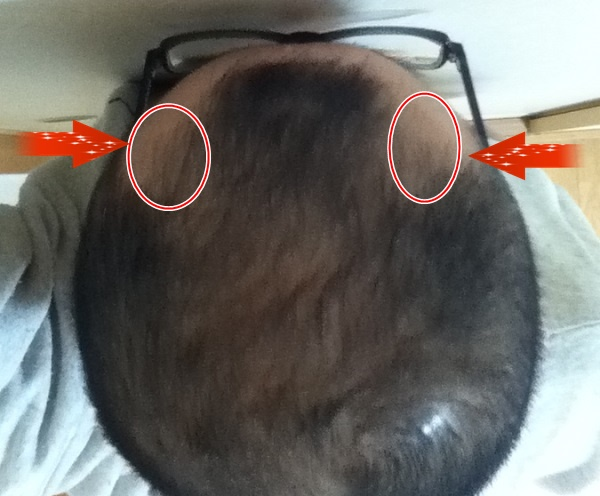 新毛を実感するフィンジアの315日目の頭頂部