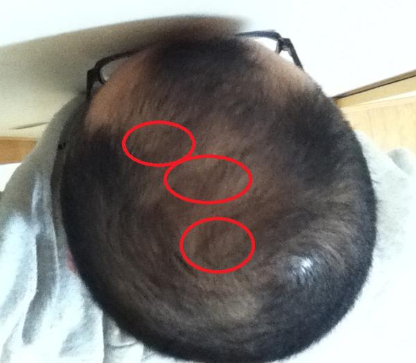 2017年3月4日の頭頂部で生え方の違う3つのポイント