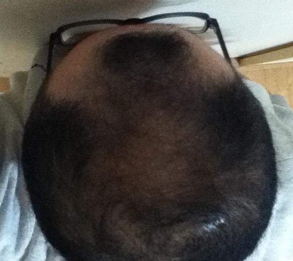 2017年3月12日の頭頂部