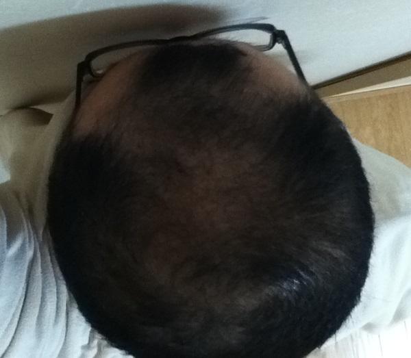 2017年3月16日の頭頂部