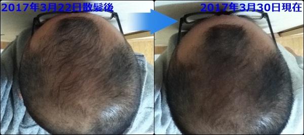 頭頂部比較散髪後8日前と後