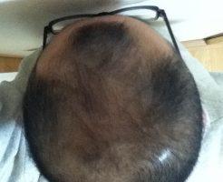 2017年4月6日の頭頂部