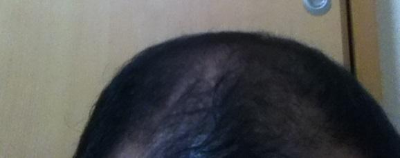 2017年5月12日の頭頂部後方