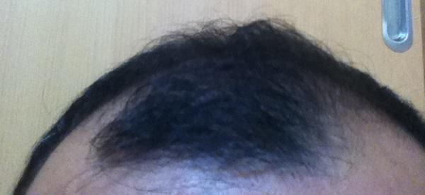 2017年5月12日の前髪の黒さ