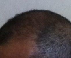 左側頭部の状態2017年6月4日